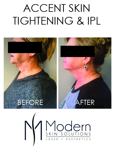 Modern Skin Solutions - Cardboard Stand - Accent IPL